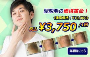 髭脱毛の価格革命 今なら税込み¥3,750/1回
